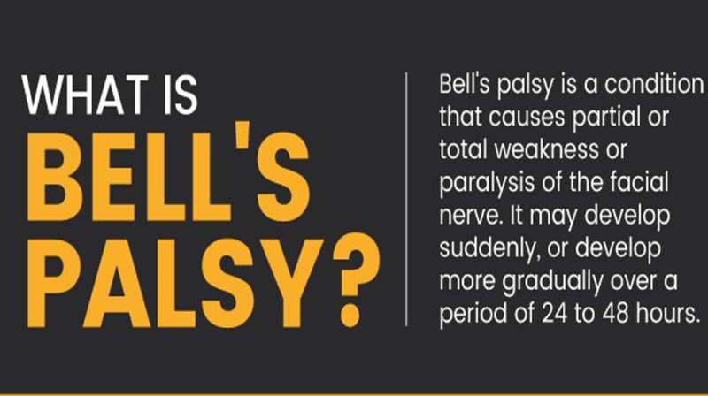 Overcoming Bell's Palsy- A Personal Journey